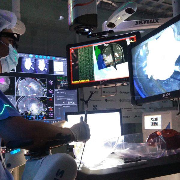 「スマート治療室」実用化めざし臨床開始